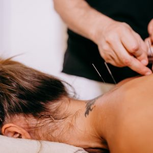 acupuncture-back-neck